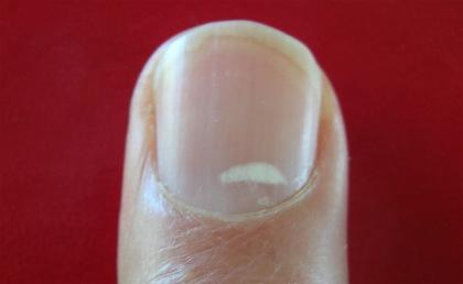 Zinc spot fingernail